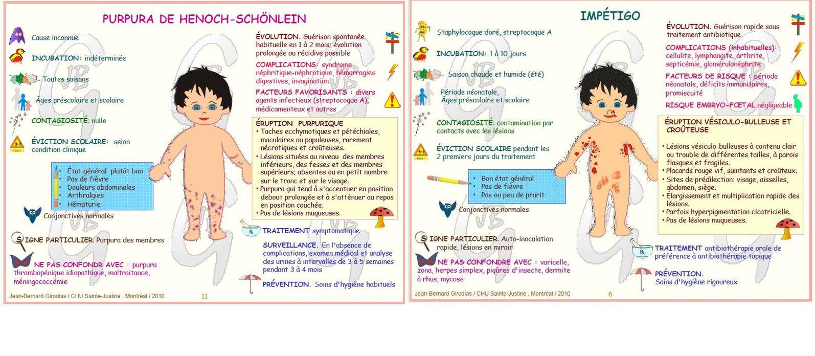 Populaire préféré maladies infantiles eruptions #ZP_58